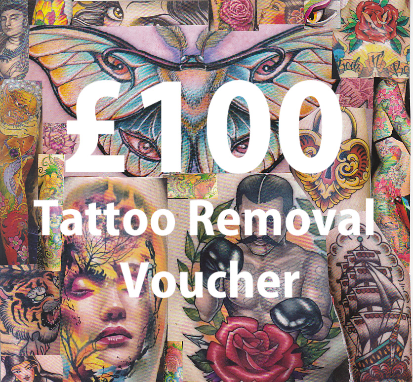 Tattoo Removal Treatment Voucher Liberation Tattoo Removal