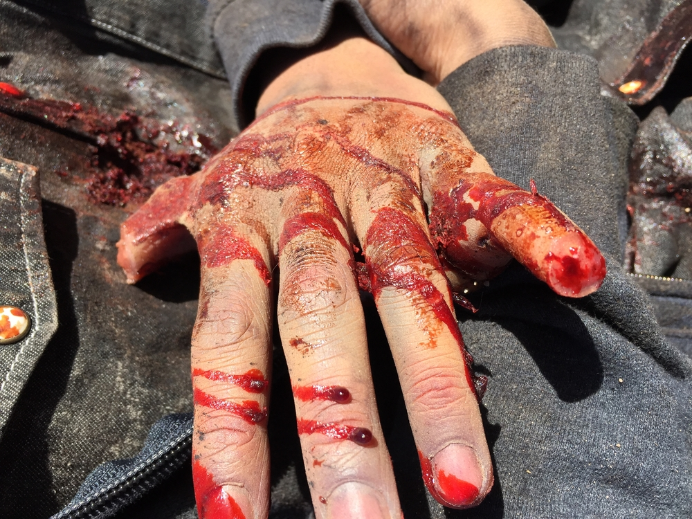 From this angle you can see the actor's tucked fingers, and the inside of the severed prosthetics.