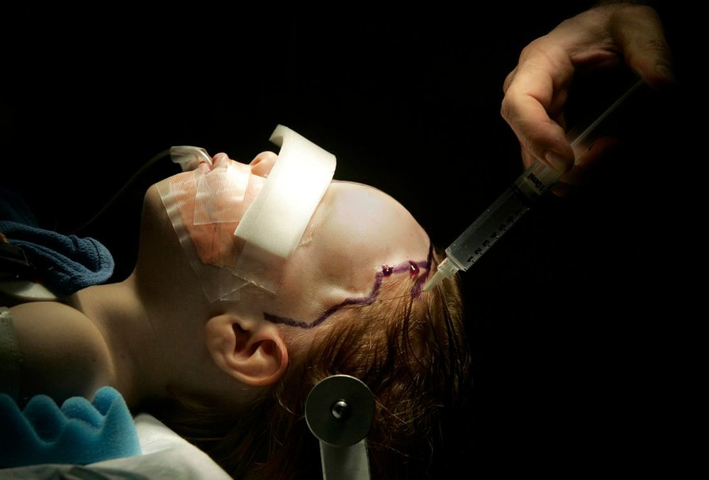brainsurgery - karen pulfer focht.jpg