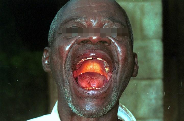 [Image: Ebola-Outbreak-Spreads-Bella-Naija8.jpg]