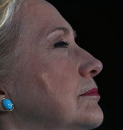 GASH ON SIDE OF HILLARY FACE RAISES CONCERNS...