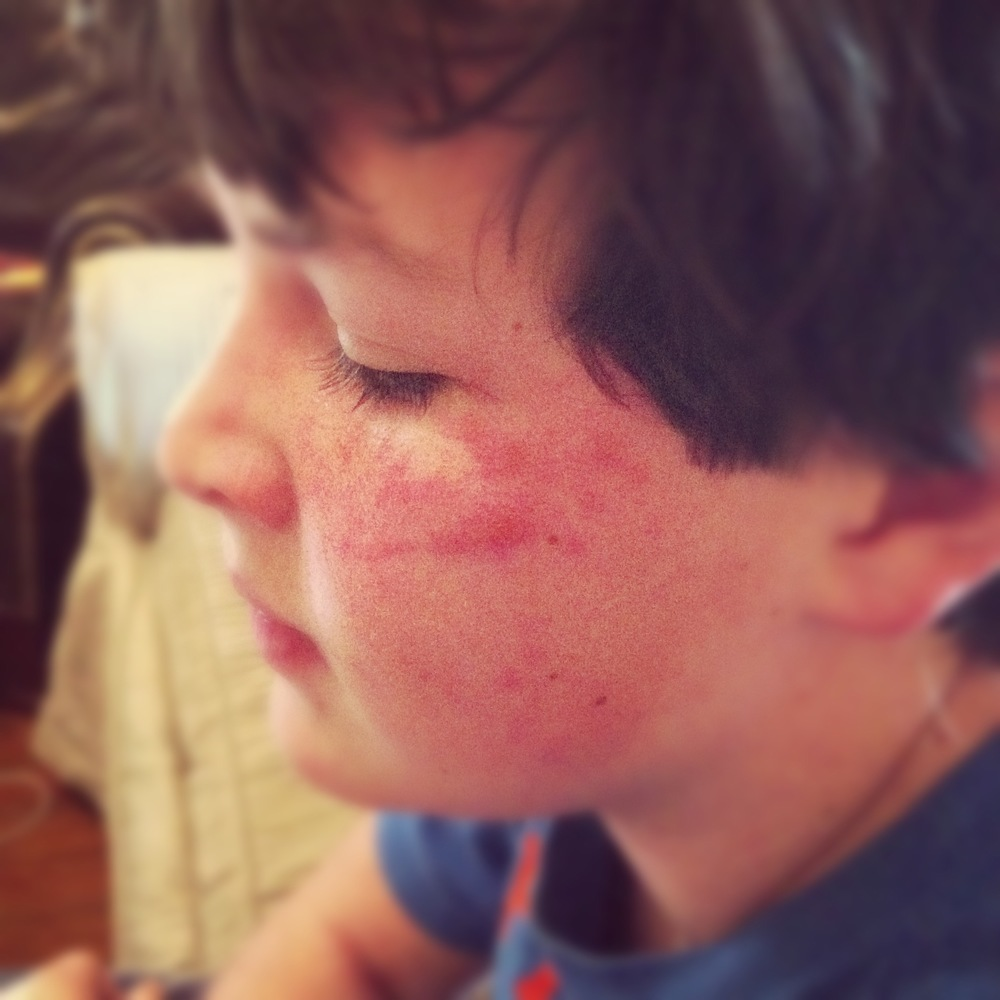 Sportweasel.com Winter Poison Ivy Rash on Face.jpg