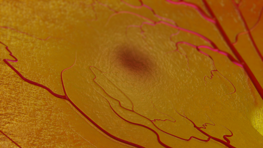 Close up of the retina showing the fovea