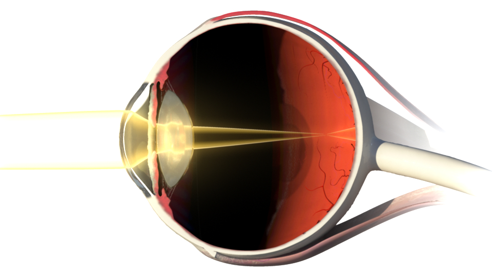 Cross-section of the eye illustrating the path of light through the eye