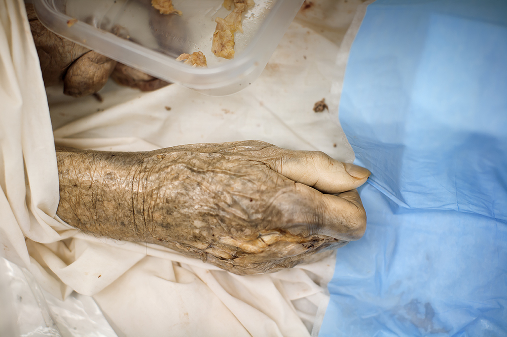 rlp-cadaver hand 72.jpg