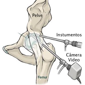 Video artroscopia de quadril Dr David Gusmão