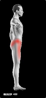 locais de dor osteonecrose.png