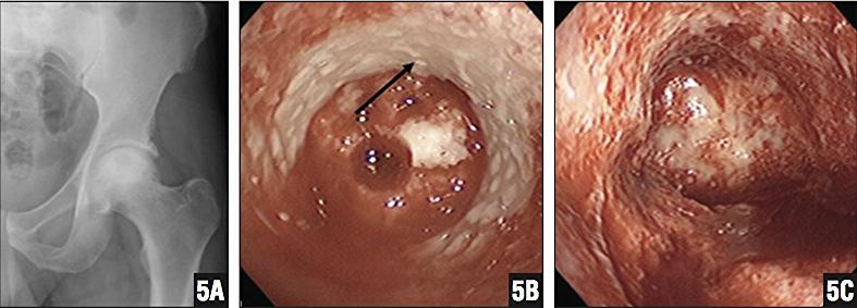 """Na figura 5A pode se ver a lesão de osteonecrose, um alo branco dentro da cabeça femural com centro escuro. A seta na figura 5B demonstra o osso esclerótico(branco) e sem irrigação sangüínea. Na figura 5C o osso sem irrigação foi removido. Será colocado enxerto ósseo no local acometido.   Brannon, James K. 2012. """"Nontraumatic Osteonecrosis of the Femoral Head: Endoscopic Visualization of Its Avascular Burden.""""  Orthopedics  35(9): e1314–22."""