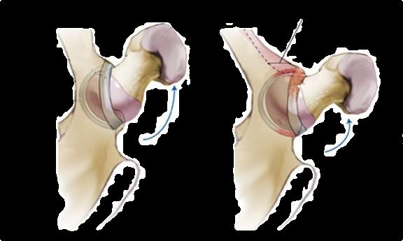 Quadril visto de cima. Esquerda: quadril normal com boa amplitude de movimento sem atrito. Direita: quadril com impacto femoroacetabular tipo pincer. Ao realizar movimentos de rotação ocorre o choque (impacto) do fêmur contra a borda do osso da bacia (acetábulo)