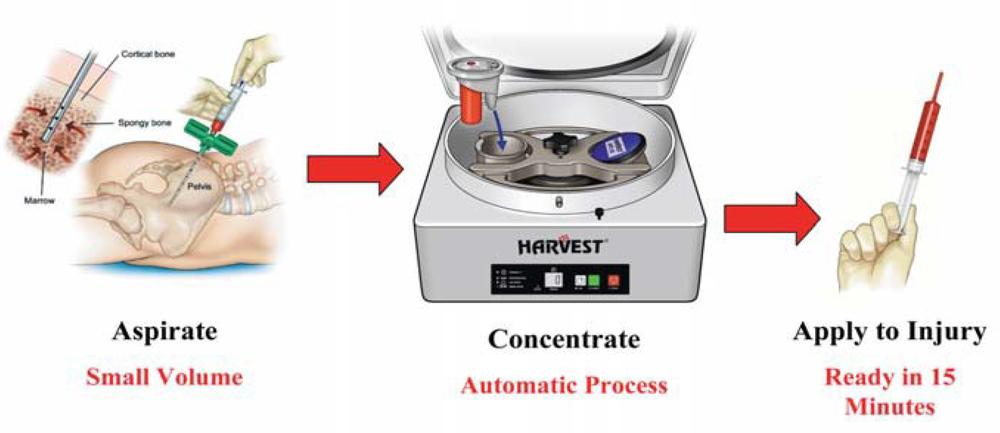 método de preparo do concentrado de medula óssea