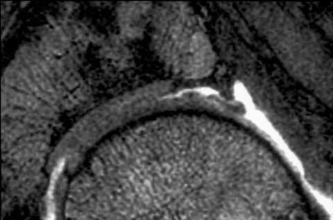 Figura 2 - Lesão da cartilagem vista em Ressonância Nuclear magnéticado quadril