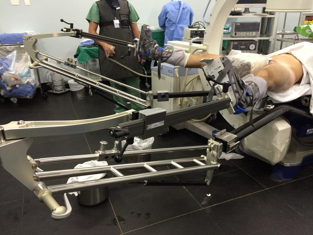 Mesa cirúrgica específica paravideoartroscopia de quadril de última geração.