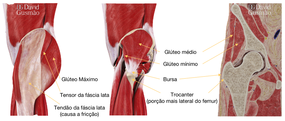 Bursite quadril trocantérica