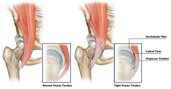 Na figura da direita, o tendão do músculo psoas está anormalmente dentro da articulação do quadril. Neste caso, começa a causar atrito sobre o labrum. Causando dor semelhante a ruptura labral e ao impacto femoroacetabular. Veja o vídeo abaixo.