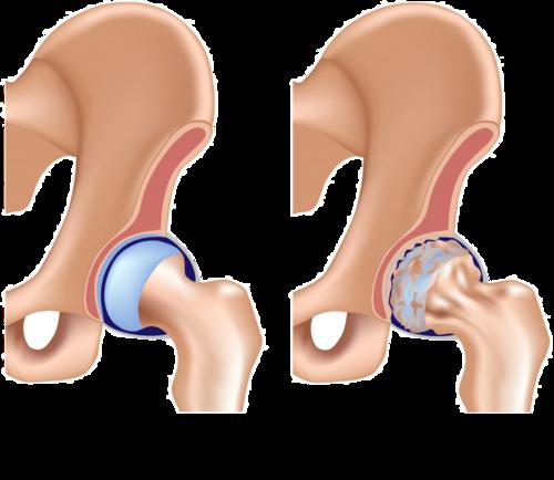 O quadril com artrose possui a superfície da articulação muito RUGOSA e com pouca cartilagem. Ao movimentar-se o paciente pode sentir ruídos, crepitações como se tivesse  AREIA  dentro da articulação. Em casos mais graves o paciente relata como se tivesse  VIDRO  quebrado dentro da articulação!