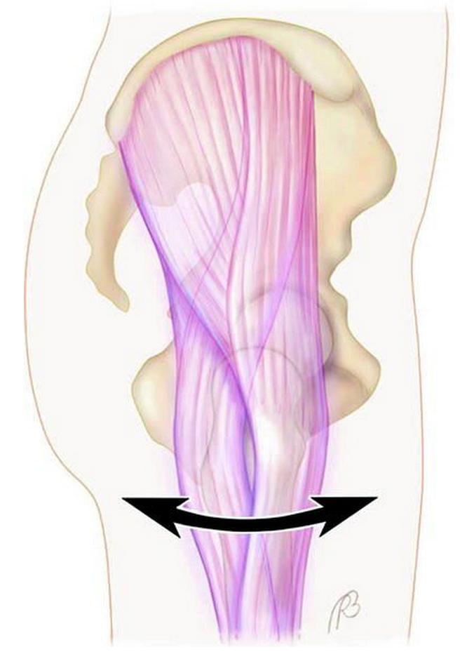 Tendão do músculo tensor da fáscia lata ao passar por cima do osso grande trocanter provoca um ressalto. Alguns pacientes relatam que o quadril parece deslocar.