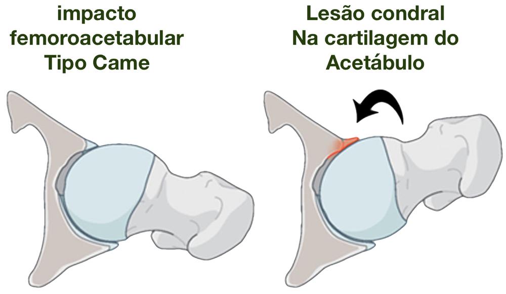 Figura 1- Visão superior do funcionamento do quadril com alterações tipo Came. O atrito excessivo da cabeça femoral contra o acetábulo causa lesão na cartilagem.
