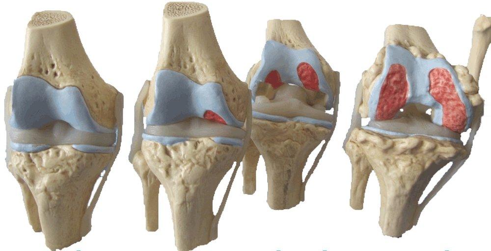 Diferentes graus de desgaste da cartilagem do joelho em um modelo plástico