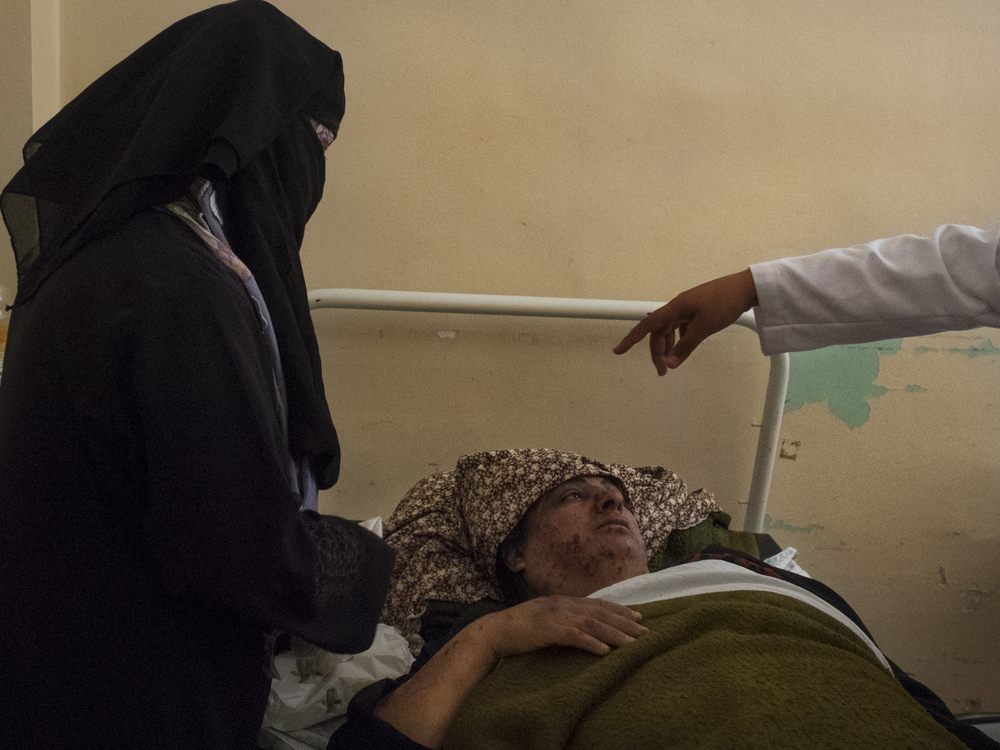 A woman injuried by the Israeli bombardments in Kahn Yunis Hospital, July 18, 2014.
