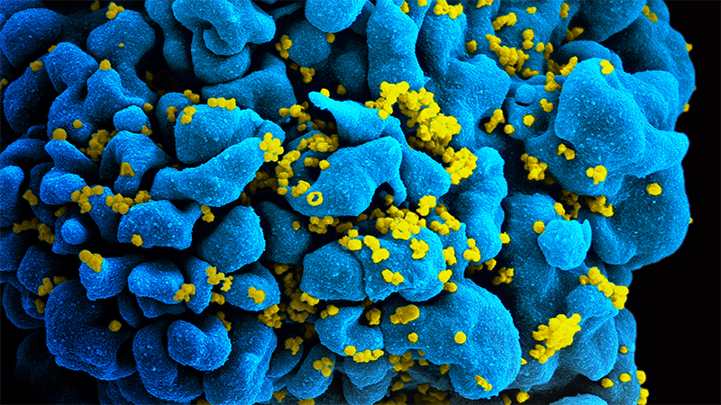 A CD4 cell infected with HIV.