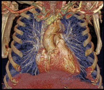 CT ClinImage Cardiac 4
