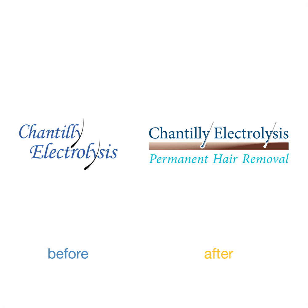 Chantilly-Elecrolysis-beforeafter.png
