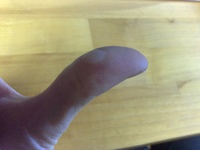 I think I have discovered a new systematic type of injury. It is commonly acquired from assembling cheap furniture with the poor quality tools that are provided. I call it Ikea; Thumb.