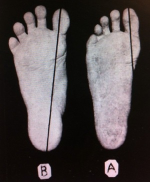 Bare-foot on the left. Shoe-foot on the right (source: wikipedia)