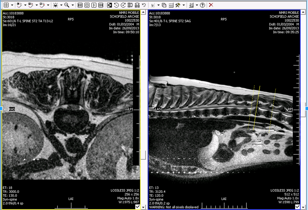 MRI Scan showing Cross Section and Lateral View. Yellow lines reflect cross section position and are located on the affected disc.