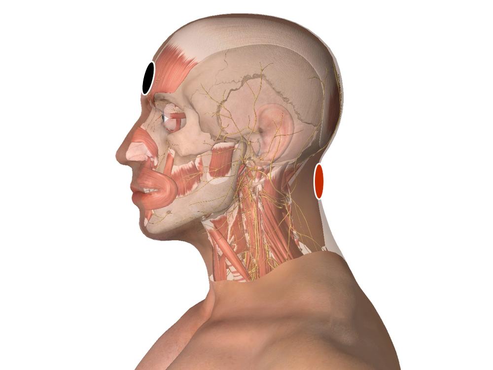 Hipófisis - bulbo raquídeo
