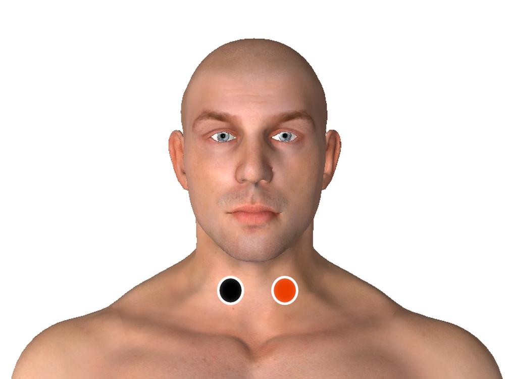 Tiroides - tiroides