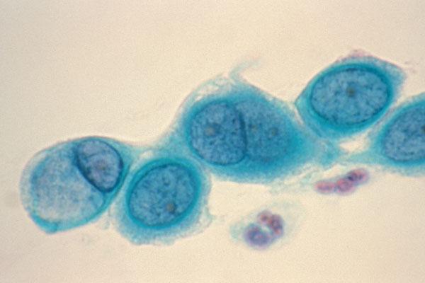 Chlamydia-trachomatis-1.jpg