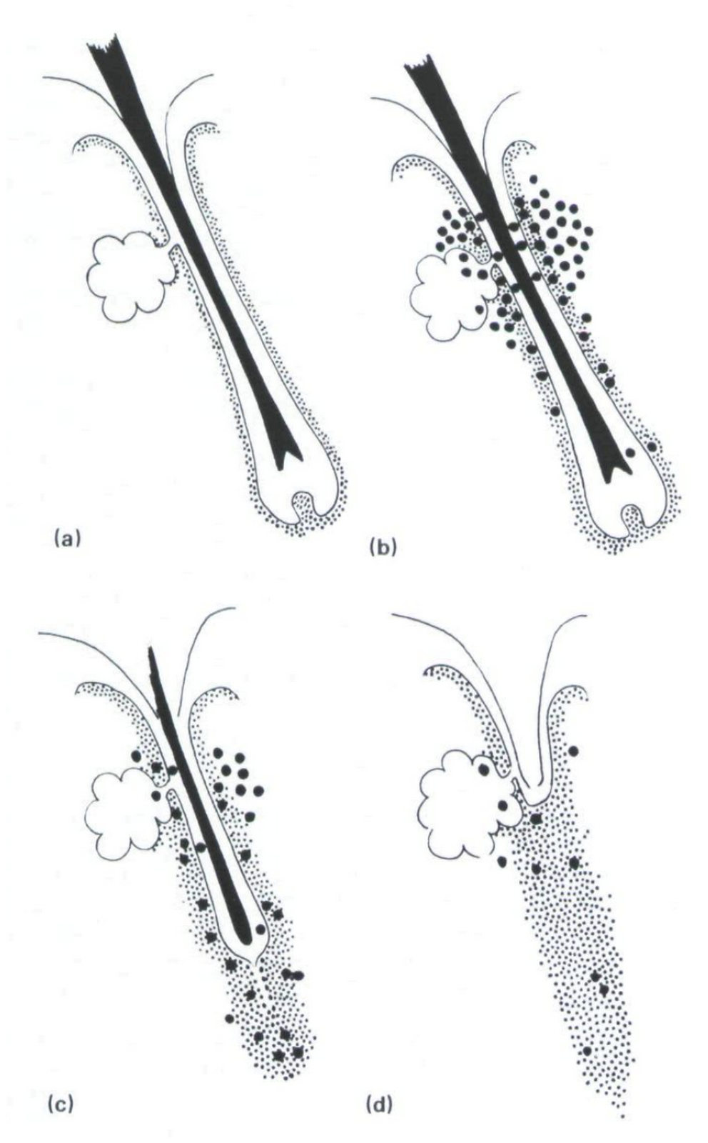 (A) Normal anagen follicles. (B) infiltrated by activated T cells. (C) Persistence of T cells within the sheath is associated with mast cell degranulation and induction of collagen synthesis by sheath fibroblasts.