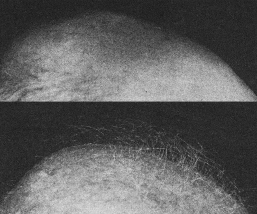 "Image : ""Scalp of 78-year-old white man bald for 30 years. Top, Clinically scalp appears completely bald, except at sides, but close inspection shows barely perceptible fuzz of tiny, downy hairs. Bottom, Same scalp after nine months of topical testosterone. Fine lanugo-type hairs have become coarser and longer. Only follicles which had not completely involuted responded to testosterone, probably no more than 10% of follicles."" Papa, C.M. and Kligman, A.M.  Stimulation of Hair Growth by Topical Application of Androgens . JAMA. 1965;191(7):521-525."