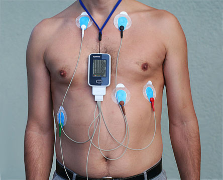 The Holter monitor allows heart rhythm to be monitored over a specific period, normally 24 or 48 hours. But it still isn't something you'd be happy to wear for ever — even if you could afford the rental and the expense of transcribing the results (Image Wiki Commons)