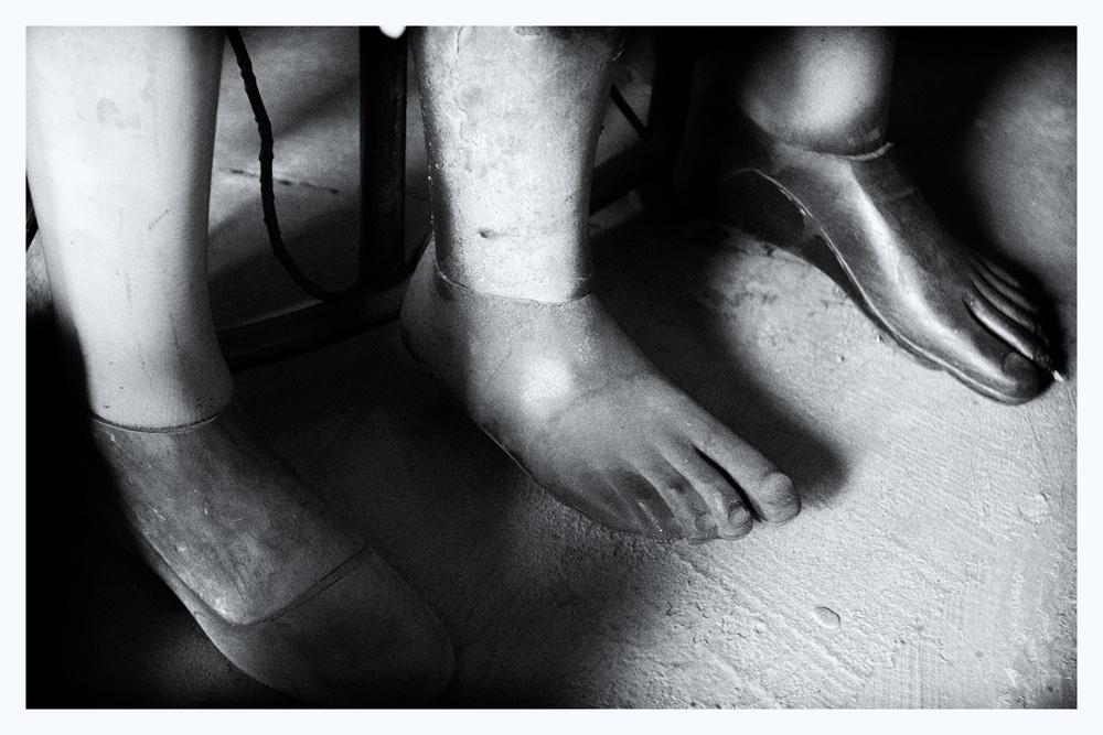 Three prosthetic legs.jpg