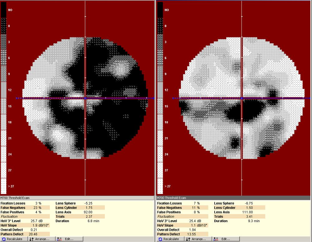 Advanced visual field loss