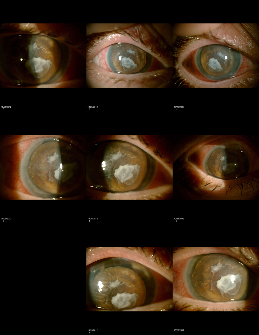 Composite photo subluxed cataract