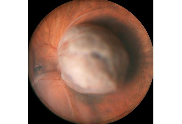 Large choroidal melanoma (Wills Eye)