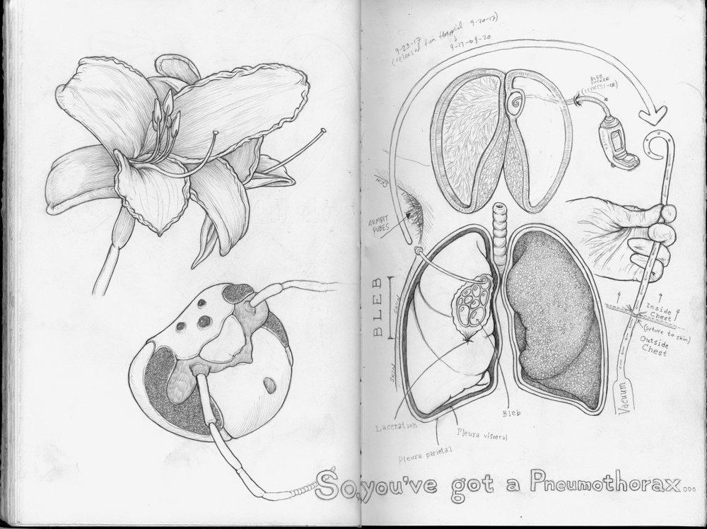 pneumothorax-sketch-web.jpg
