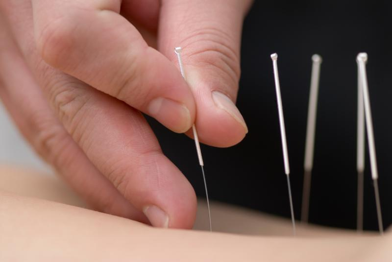 acupuncture110324104147-large.jpg