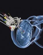 MRI Interventions