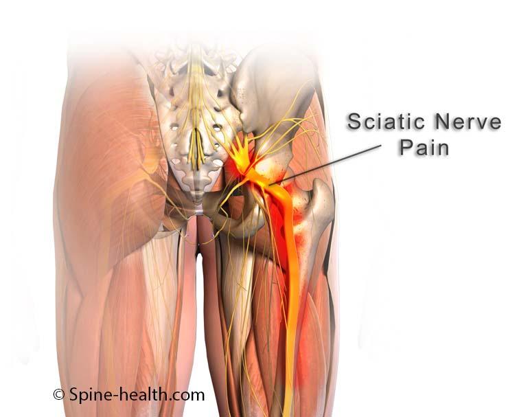 www.Spine-Health.com