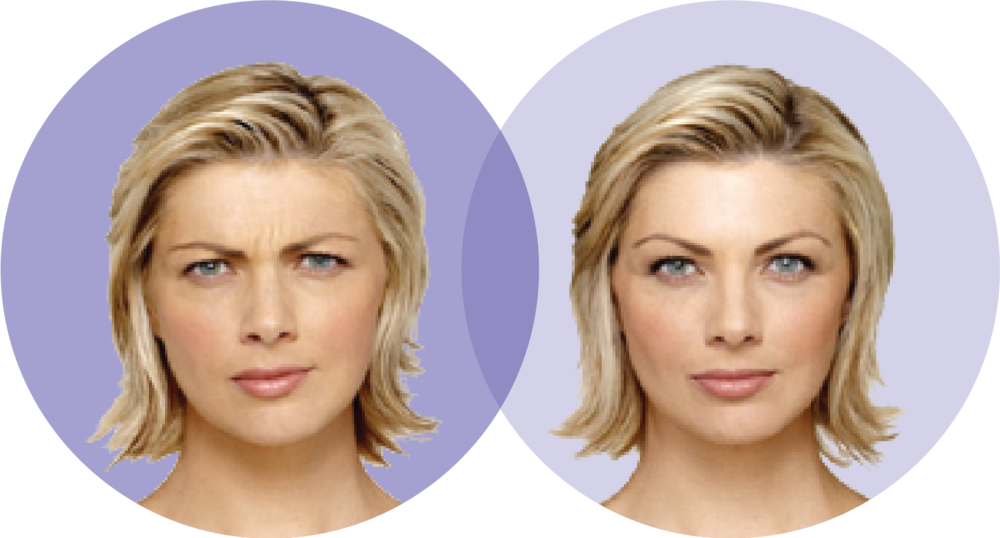 woman1-before-after.png