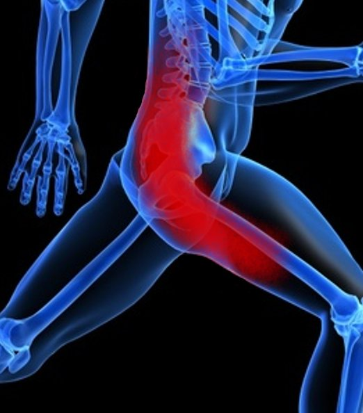 Sciatica pain is usually felt in the low back, buttocks and the leg.