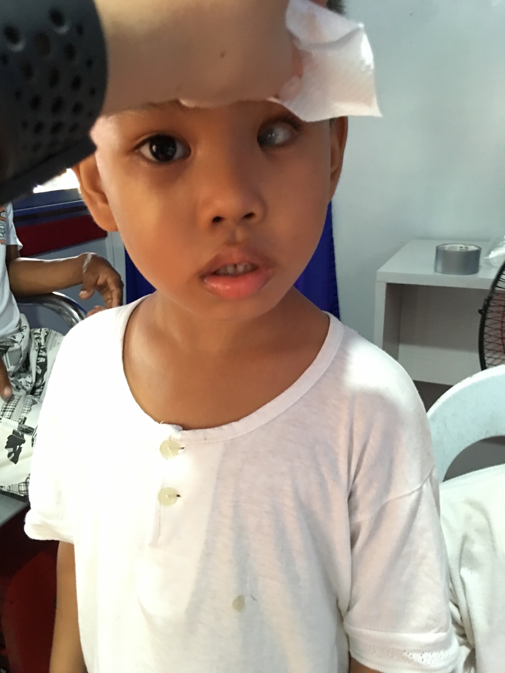 This 6-year-old boy has unfortunately gone blind in his left eye due to congenital glaucoma.