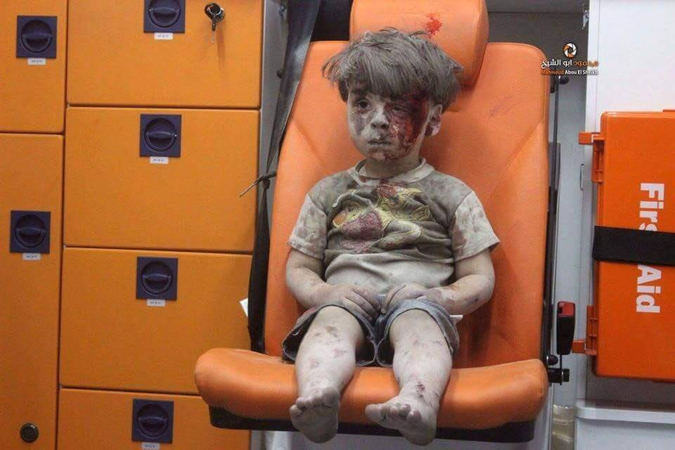 A young boy in an ambulance after being pulled from the rubble following an air strike in Aleppo.