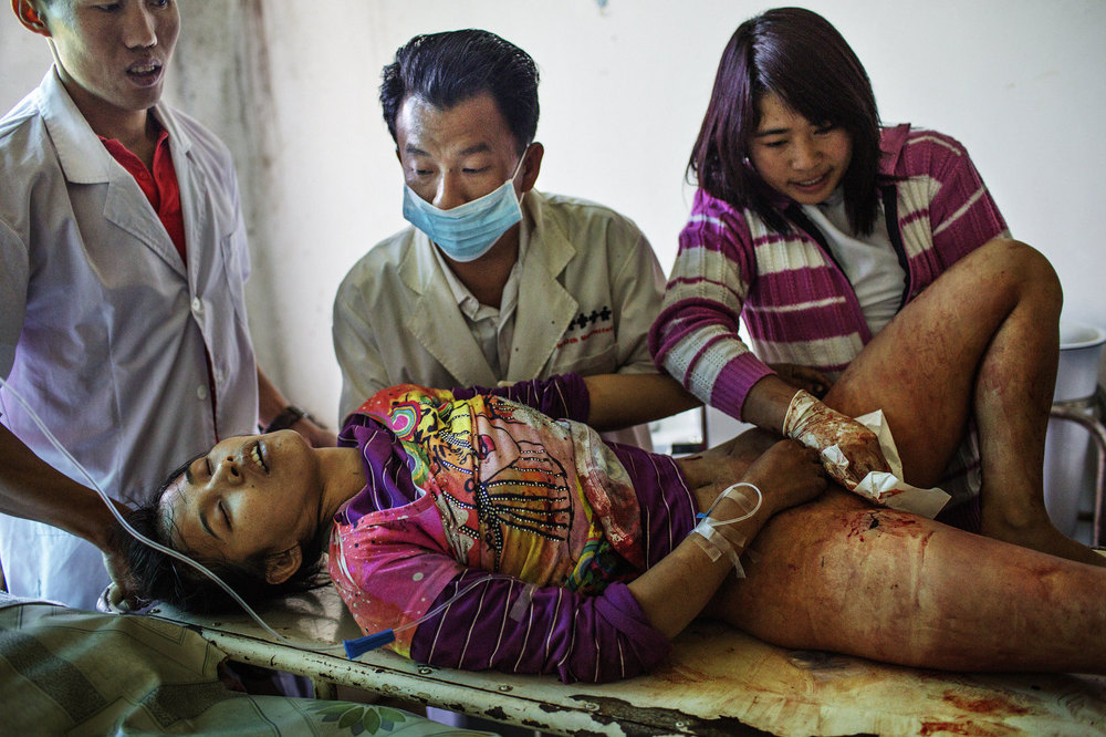 Lamung Kailing, 25, a mother of two, was working in a water melon plantation when two Burmese Army mortar grenades landed near her and three other villagers. Besides Lamung Kailing, two other civilians were wounded in the same attack and one village militiaman working to fix his farming tractor was killed.