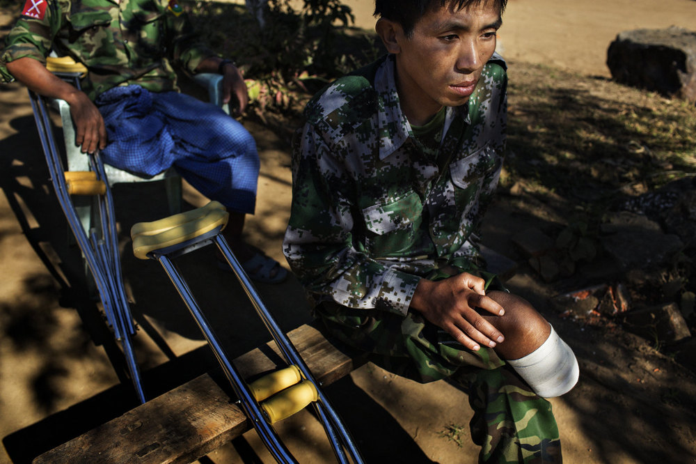 Two Kachin Independence Army (KIA) soldiers who each lost a leg to Burmese Army land mines rest in a hospital in Laiza, Kachin State in northern Myanmar.
