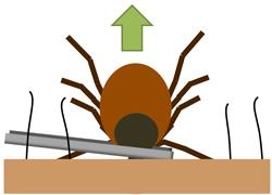tick-removal-tweazers.jpg